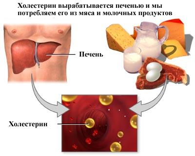 Препараты вывода холестерина